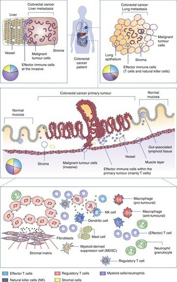 Harnessing the innate immune system and local immunological microenvironment to treat colorectal cancer