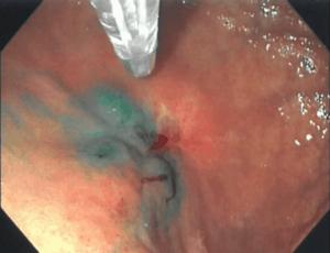 Fluorescent-Image Guidance in Robotic Subtotal Gastrectomy