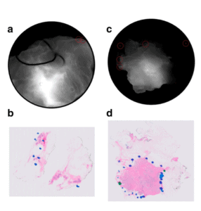 Feasibility Study of a Novel Protease-Activated Fluorescent Imaging System for Real-Time, Intraoperative Detection of Residual Breast Cancer in Breast Conserving Surgery